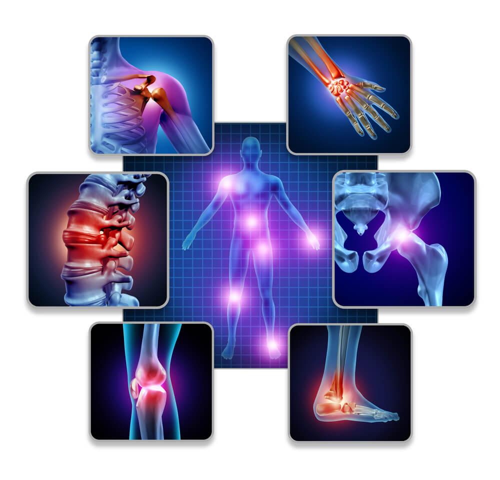 התסמינים של מחלה הפיברומיאלגיה הם רבים